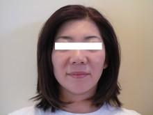 ア クールのブログ-整顔 施術後